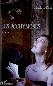 Les ecchymoses - Héloïse