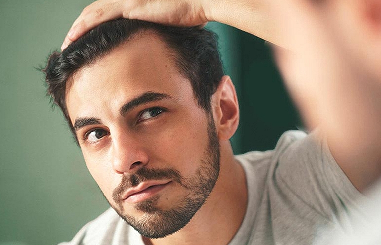SOS cheveux homme : nos solutions anti-chute